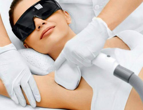 ¿Por qué el diodo láser es el mejor método de depilación permanente?